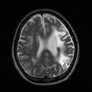 脳梗塞 半身麻痺、言語障害、しびれなど運動障害、感覚障害が代表的。一見 脳の障...  脳卒中(